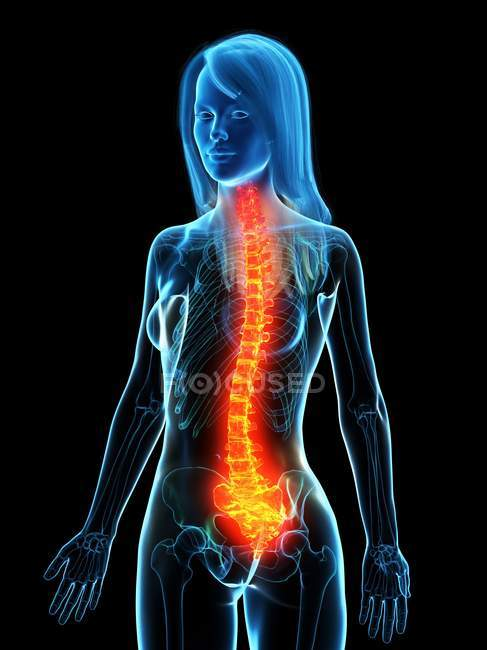 Abstract female body with back pain, conceptual digital illustration. — Stock Photo