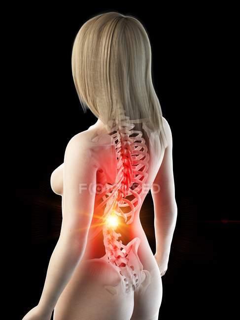 Corpo feminino abstrato com dor nas costas, ilustração digital conceitual . — Fotografia de Stock