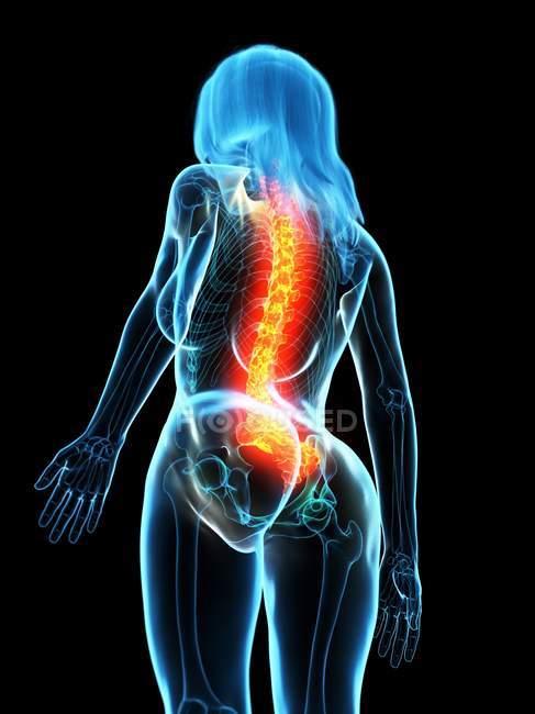Corpo femminile astratto con mal di schiena, illustrazione digitale concettuale . — Foto stock