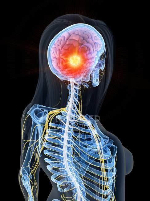 Cuerpo femenino con cáncer cerebral, ilustración digital conceptual . - foto de stock