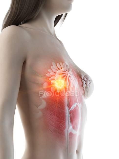 Cuerpo abstracto femenino con cáncer de mama brillante, ilustración conceptual por computadora . - foto de stock