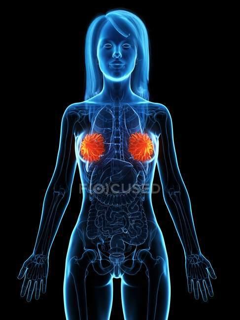 Silhueta anatômica feminina com doença mamária, ilustração conceitual do computador . — Fotografia de Stock