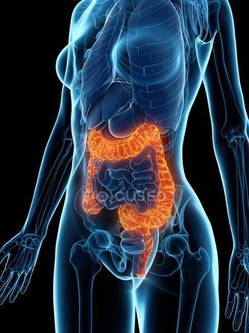 Cuerpo femenino con colon enfermo, ilustración digital . - foto de stock
