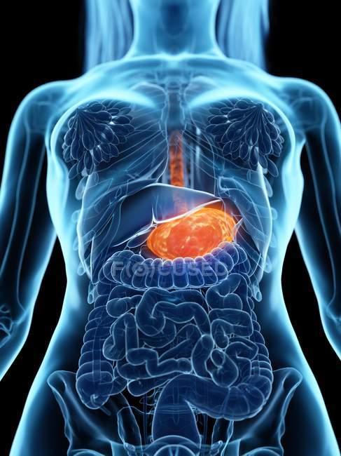 Estómago enfermo en cuerpo femenino abstracto, ilustración digital . - foto de stock