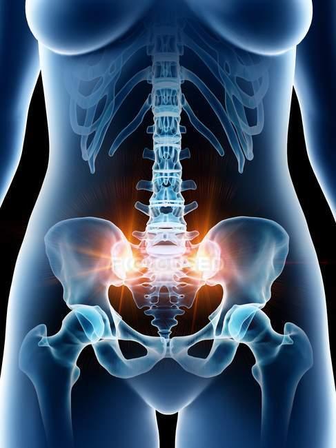 Abstrakte schmerzhafte weibliche Beckenknochen, Computerillustration. — Stockfoto