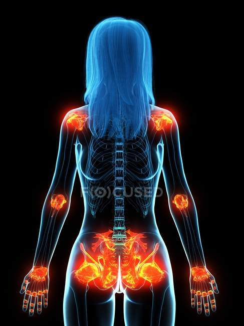 Inflamed ligaments in female body, conceptual computer illustration. — Stock Photo