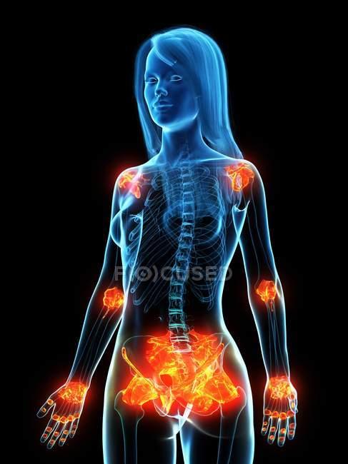 Ligamentos inflamados en el cuerpo femenino, ilustración conceptual por ordenador . - foto de stock