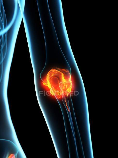 Inflamed ligaments in human elbow, conceptual computer illustration. — Stock Photo