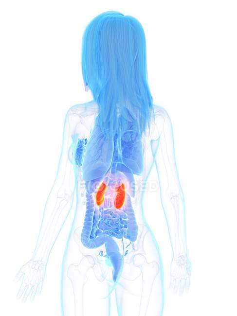 Помаранчеві нирки в жіночому тілі, комп