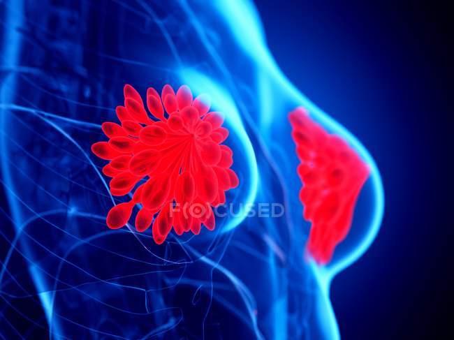 Glandes mammaires de couleur rouge dans le corps abstrait féminin sur fond bleu, illustration numérique . — Photo de stock