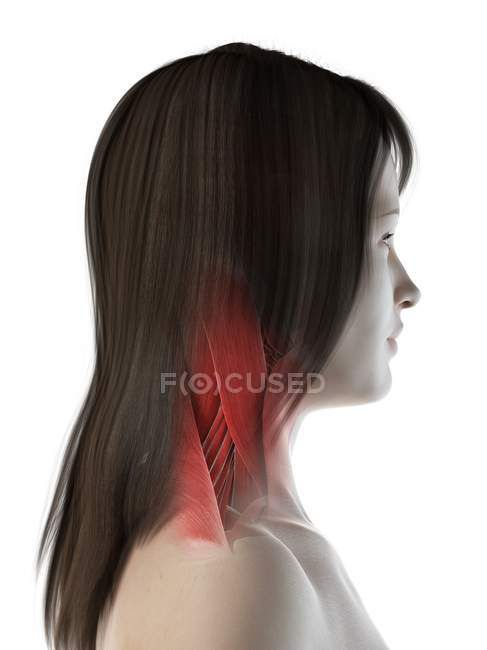 Músculos del cuello en el cuerpo femenino, vista lateral, ilustración por computadora - foto de stock