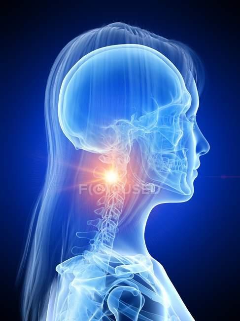 Силуэт женщины с перчаточной болью в шее, концептуальная компьютерная иллюстрация. — стоковое фото