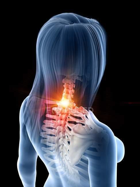 Silueta de mujer con dolor de cuello brillante, ilustración conceptual por computadora . - foto de stock