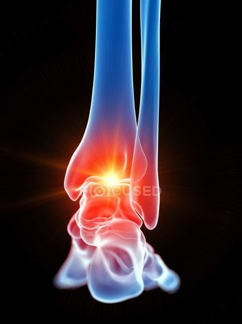 Гострий біль у нозі людини, цифровий приклад. — стокове фото