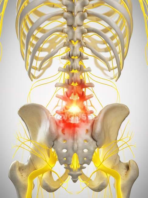 Человеческий скелет с болью в спине, концептуальная компьютерная иллюстрация. — стоковое фото