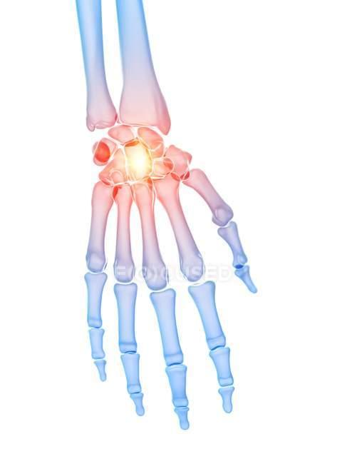 Человеческий скелет с болью в руке, концептуальная компьютерная иллюстрация. — стоковое фото