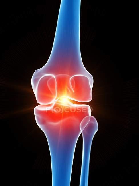 Anatomía humana del dolor de rodilla, ilustración conceptual por computadora . - foto de stock