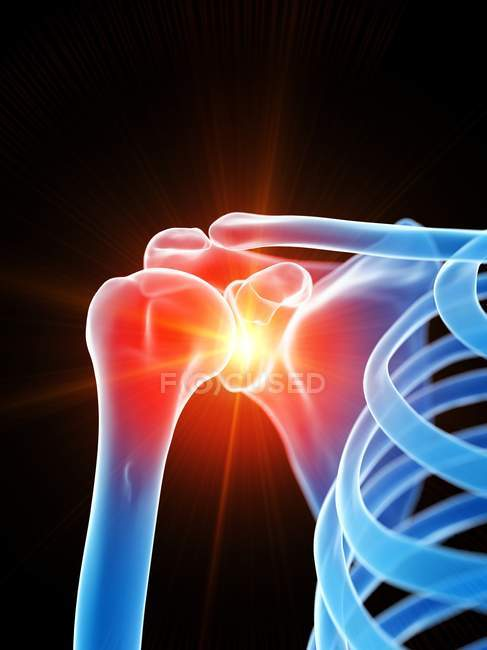Людський скелет з болем плеча, концептуальний комп'ютерний малюнок.. — стокове фото