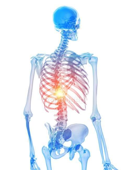 Esqueleto humano con dolor torácico, ilustración conceptual por ordenador . - foto de stock