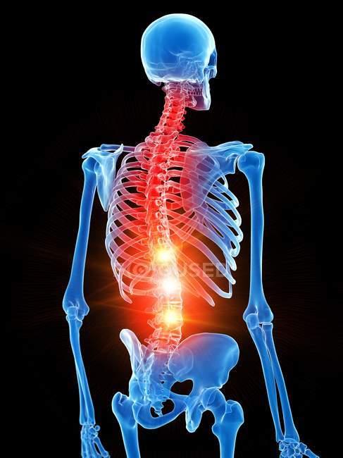 Людський скелет з болем грудей, концептуальний комп'ютерний приклад. — стокове фото