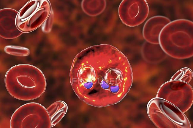 Protozoan Plasmodium falciparum, causative agent of tropical malaria in red blood cells, digital illustration. — Stock Photo