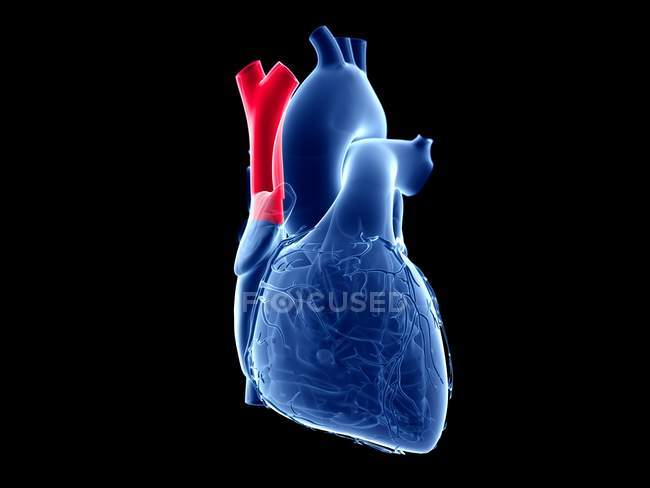 Людське серце з кольоровою верхньою порожнистою веною.. — стокове фото