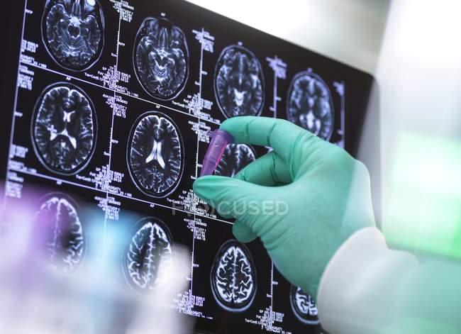 Scienziato preparazione campione di fronte a scansioni cerebrali, concetto di ricerca neurologica. — Foto stock