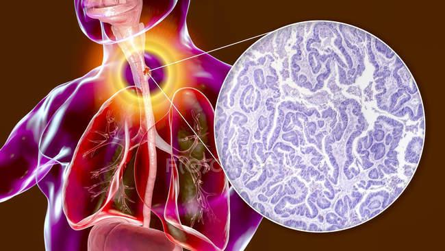 Cáncer de esófago, ilustración por computadora y micrografía ligera del tejido canceroso . - foto de stock