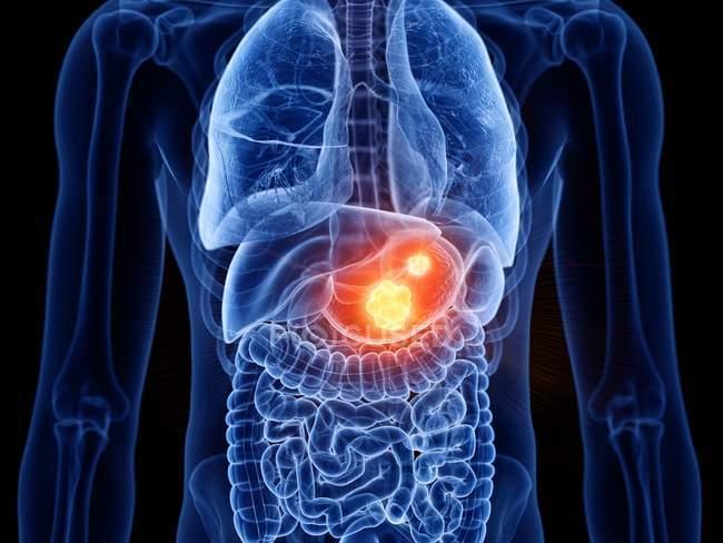 Cuerpo masculino transparente abstracto con cáncer de estómago brillante, ilustración digital . - foto de stock