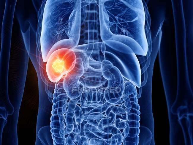 Cuerpo masculino transparente abstracto con cáncer de bazo brillante, ilustración digital . - foto de stock