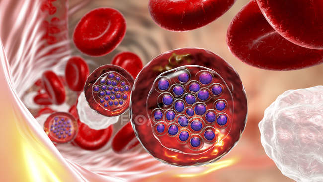 Protozoa plasmodium falciparum, Erreger der tropischen Malaria in Blutgefäßen, digitale Illustration. — Stockfoto