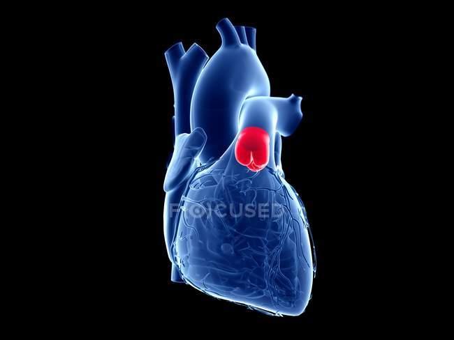 Corazón humano con válvula pulmonar de color, ilustración por ordenador . - foto de stock