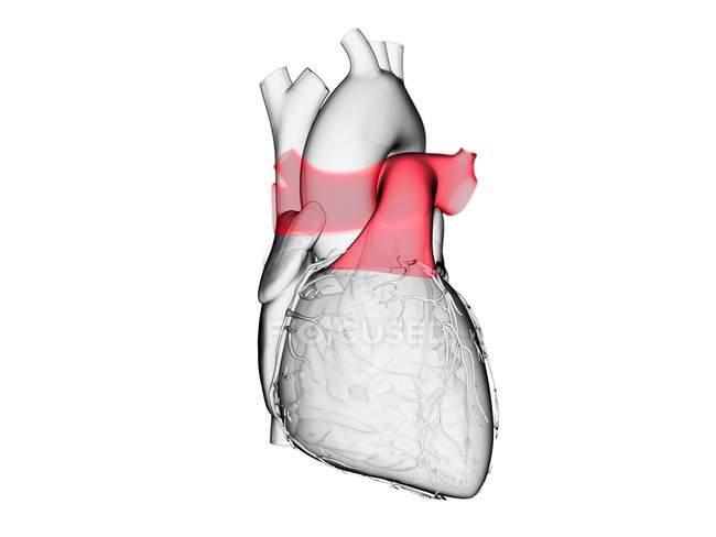 Людське серце з кольоровим легеневим стовбуром, комп