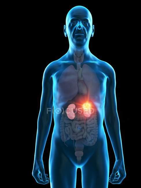 Digitale Illustration der Anatomie eines älteren Mannes mit Nierentumor. — Stockfoto