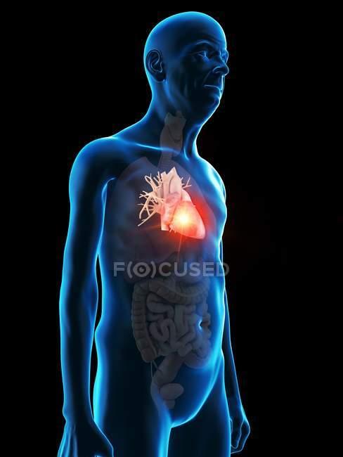 Ilustración digital de la anatomía del hombre mayor que muestra el tumor cardíaco . - foto de stock