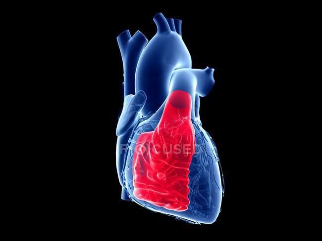 Людське серце з кольоровим правим шлуночком, комп