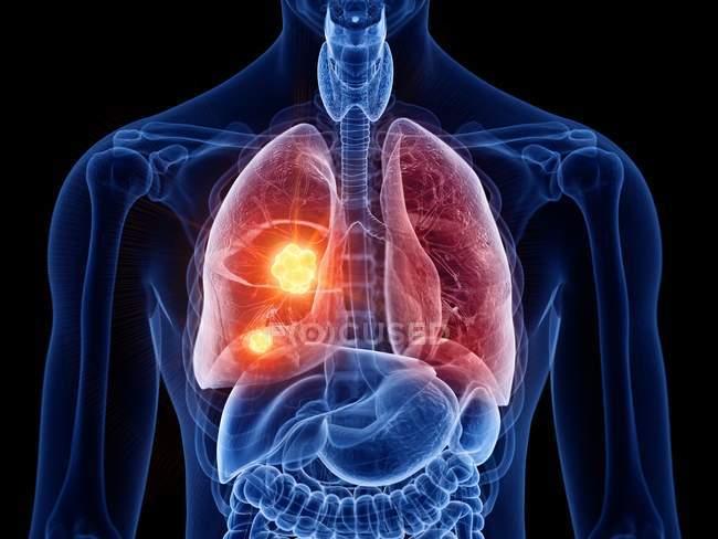 Silhouette maschile astratta con cancro ai polmoni, illustrazione digitale . — Foto stock
