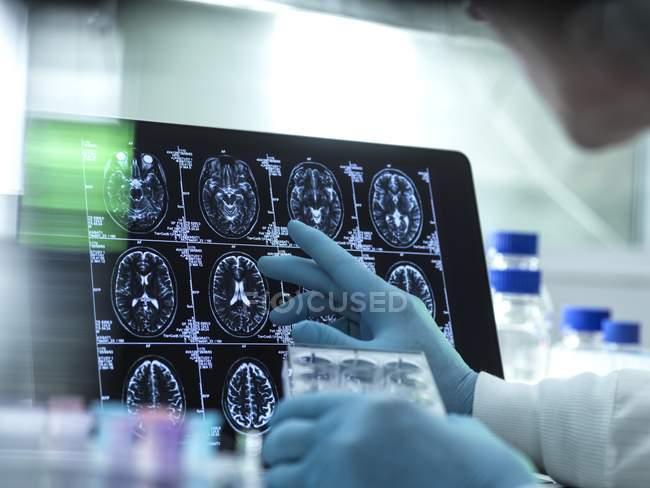 Les mains du scientifique préparent une plaque multi puits devant les scans cérébraux, concept de recherche en neurologie . — Photo de stock