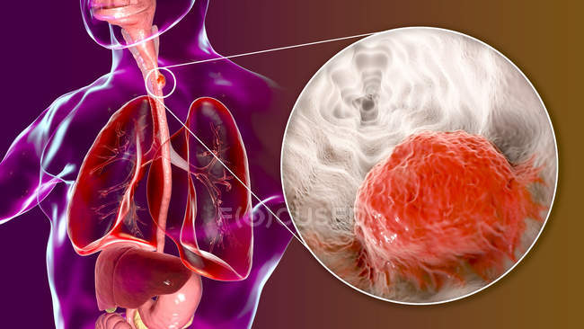 Oesophageal cancer, composite digital illustration with human body and cancer cell. — Stock Photo