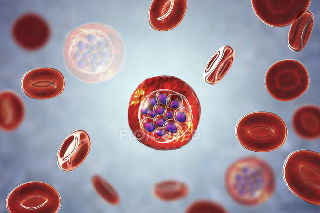 Plasmodium vivax protozoos y glóbulos rojos, ilustración digital . - foto de stock