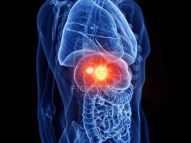 Cuerpo masculino transparente con cáncer de hígado, ilustración digital . - foto de stock