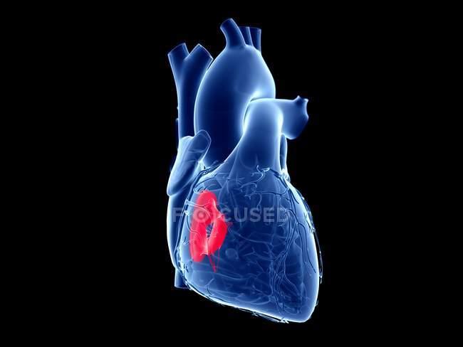Человеческое сердце с цветным трехстворчатым клапаном, компьютерная иллюстрация . — стоковое фото