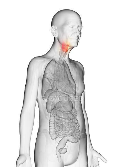 Illustrazione digitale del corpo dell'uomo anziano trasparente con laringe visibile color arancio . — Foto stock