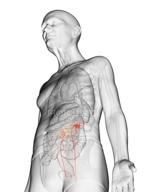 Ilustración digital del cuerpo del anciano transparente con uréteres visibles de color naranja . - foto de stock