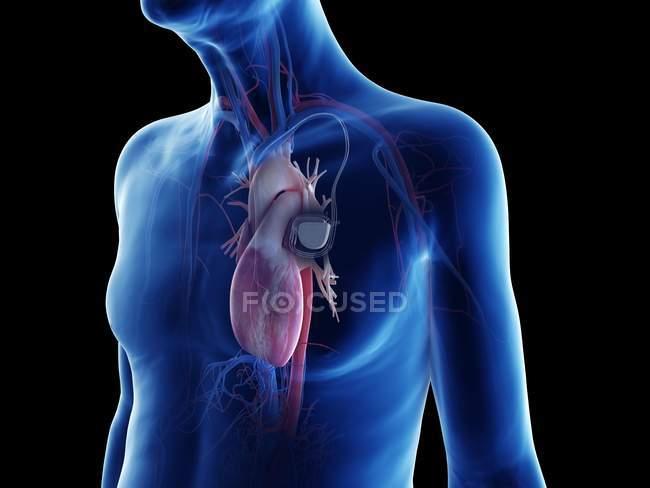 Medizinische digitale Illustration eines älteren Mannes mit Herzschrittmacher im Herzen. — Stockfoto