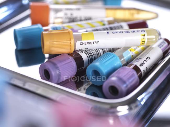 Close-up of human urine, blood and various chemistry samples in test tubes while screening in medical lab. — Stock Photo