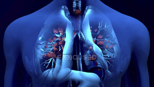 Conceptual illustration of coronavirus particles in human lungs. — Stock Photo