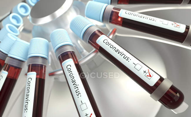 Vials of blood in laboratory centrifuge testing for coronavirus infection, conceptual digital illustration. — Stock Photo