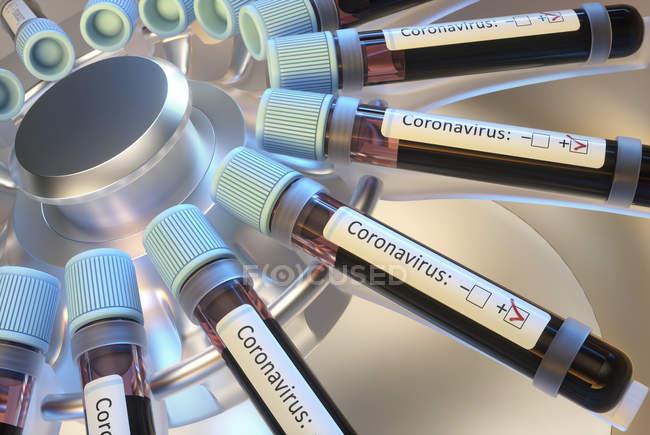 Frascos de sangue em teste de centrífuga laboratorial para infecção por coronavírus, ilustração digital conceitual . — Fotografia de Stock