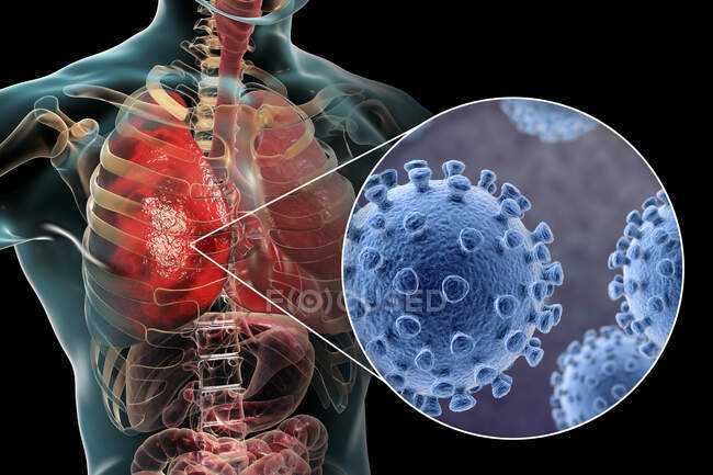 Coronaviruses causing pneumonia, conceptual computer illustration — Stock Photo